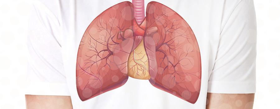 ANVISA aprova nova combinação de medicamentos para o tratamento de câncer de pulmão metastático